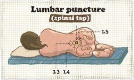 Illustration spinale de piqûre lombaire sur le vieux papier illustration de vecteur