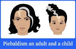 Illustration of Piebaldism in an adult and a child Stock Image