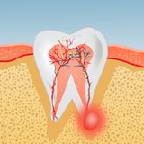 Tooth with abscess. Illustration of tooth with abscess vector illustration
