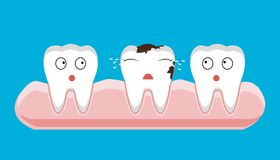 Illustration of tooth sectional view decay with caries dental health problem royalty free illustration