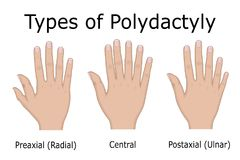 Illustration of Types of Polydactyly Royalty Free Stock Photos