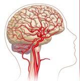 Illustration und beschreibender Entwurf des Aneurysmas im menschlichen Gehirn stock abbildung