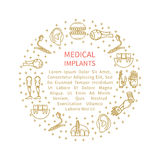 Illustration of various medical prostheses Royalty Free Stock Photos