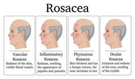 Illustration von Rosacea Stockfoto
