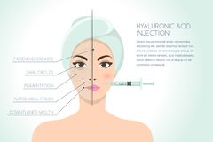 Before and after  illustration of woman having hyaluronic acid facial injection.   Stock Image