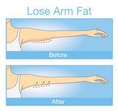 Illustrationen av förlorar före och efter armfett Arkivfoton