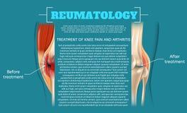 Illustrations-Behandlung von Knie-Schmerz und Arthritis stock abbildung