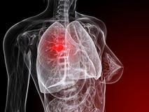 Illustrazione del cancro polmonare Immagine Stock