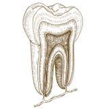 Illustrazione dell'incisione della struttura umana del dente Immagine Stock Libera da Diritti