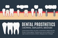 Illustrazione dentaria di protesi Immagine Stock