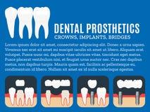Illustrazione dentaria di protesi Immagini Stock Libere da Diritti
