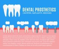 Illustrazione dentaria di protesi Fotografia Stock Libera da Diritti