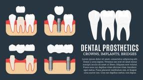 Illustrazione dentaria di protesi Fotografie Stock
