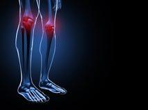 Illustrazione di dolore del ginocchio Fotografie Stock