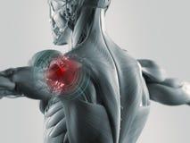 Illustrazione di dolore della spalla Fotografie Stock