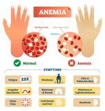 Illustrazione di vettore di anemia Schema identificato con i globuli rossi illustrazione di stock