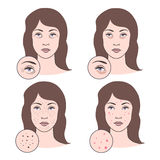 Illustrazione di vettore dei problemi di pelle Fotografia Stock