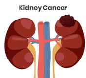 Illustrazione di vettore del cancro del rene Il tumore sta colpendo il rene sinistro mentre il rene giusto è normale Immagine Stock Libera da Diritti