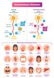 Illustrazione di vettore di malattie autoimmuni Vario insieme della raccolta di malattia illustrazione di stock