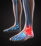 Illustrazione dolorosa della caviglia Immagine Stock Libera da Diritti