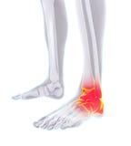 Illustrazione dolorosa della caviglia Fotografie Stock Libere da Diritti