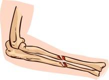 Illustrazione medica dell'osso di braccio Fotografia Stock Libera da Diritti