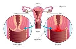 Illustrazione medica di cervicite illustrazione vettoriale