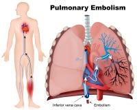 Illustrazione medica di embolia polmonare con la descrizione su fondo bianco illustrazione di stock