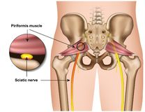 Illustrazione medica di sindrome 3d di Piriformis su fondo bianco illustrazione di stock