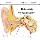 Illustrazione medica di vettore di malattia 3d dell'orecchio di otite media su fondo bianco royalty illustrazione gratis