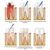 Illustrazione medica di vettore di trattamento del canale radicolare isolata su fondo bianco con la descrizione illustrazione vettoriale