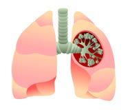 Illustrazione scientifica dell'apparato respiratorio con un'apertura nel polmone sinistro che mostra l'albero bronchiale Illustrazione di Stock