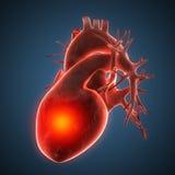 Illustrazione umana di malattia del cuore Fotografie Stock