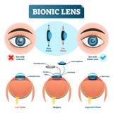 Ilustração biônico do vetor da lente Esquema etiquetado estrutura da lente de olho ilustração do vetor