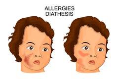 Ilustração da cara de uma diátese ou de uma alergia de sofrimento da criança Imagens de Stock
