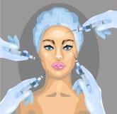 Ilustração da cirurgia plástica do vetor Procedimento do cosmético da injeção de Botox Fotografia de Stock