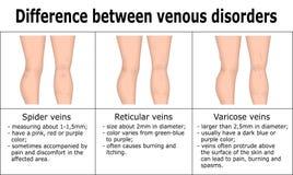 Ilustração da diferença entre desordens venosas Imagens de Stock Royalty Free