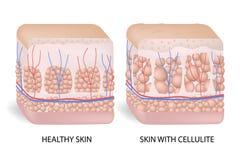 Ilustração de celulites mostrando de seção transversal da pele A forma??o de celulites A celulite ocorre na maioria de fêmeas e ilustração do vetor