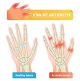Ilustração do vetor da artrite do dedo Junções afetadas saudáveis e da doença ilustração stock