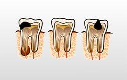 Ilustração do vetor da cárie da deterioração de dente Imagem de Stock Royalty Free