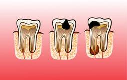 Ilustração do vetor da cárie da deterioração de dente Foto de Stock