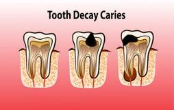Ilustração do vetor da cárie da deterioração de dente Imagem de Stock