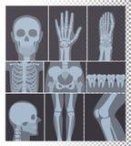 Ilustração do vetor da coleção realística dos tiros dos raios X As imagens da cabeça, ossos do raio X, dentes ajustaram-se, grupo ilustração royalty free