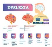 Ilustração do vetor da dislexia Esquema médico etiquetado do problema da doença do cérebro ilustração stock