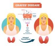 Ilustração do vetor da doença de sepulturas Diagrama etiquetado dos sintomas do diagnóstico ilustração stock