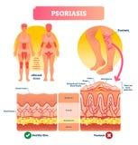 Ilustração do vetor da psoríase Doença e doença de pele Estrutura etiquetada ilustração do vetor