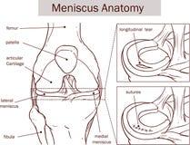ilustração do vetor de um rasgo e de uma cirurgia do menisco Fotos de Stock