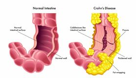Ilustração do vetor do intestino com doença de Crohns Imagens de Stock