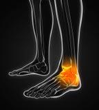 Ilustração dolorosa do tornozelo Fotografia de Stock