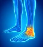 Ilustração dolorosa do tornozelo Imagens de Stock Royalty Free